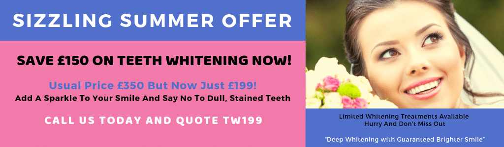 Teeth whitening summer offer